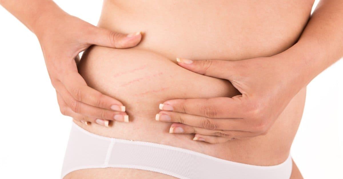 Best Postpartum Stretch Mark Cream to Get Rid of Pregnancy Stretch Marks